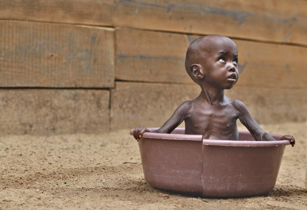 Displaying 18 gt  Images For - Starving African Children Vulture   African Children Starving Vulture
